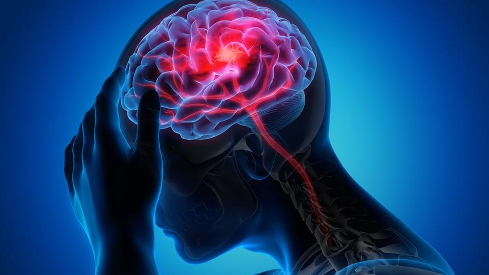 les migraines et le cbd